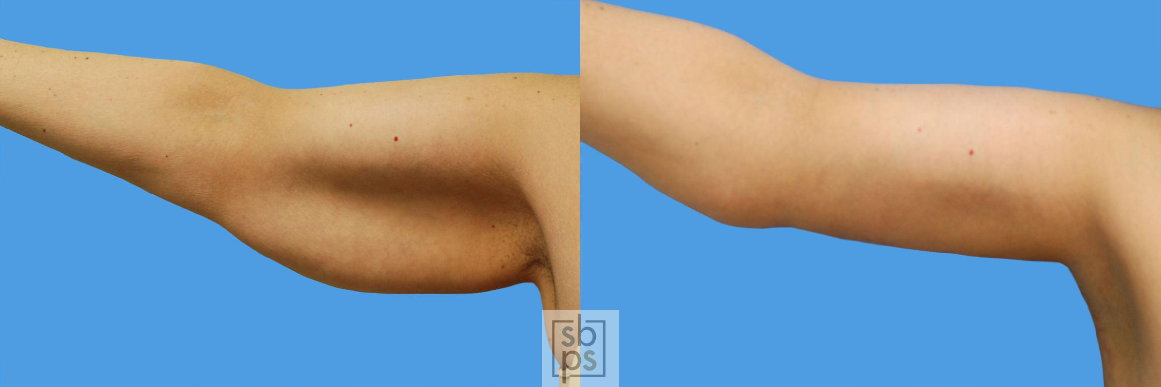 After Massive Weight Loss Before & After Photo | Torrance, CA | Plastic Surgery Source