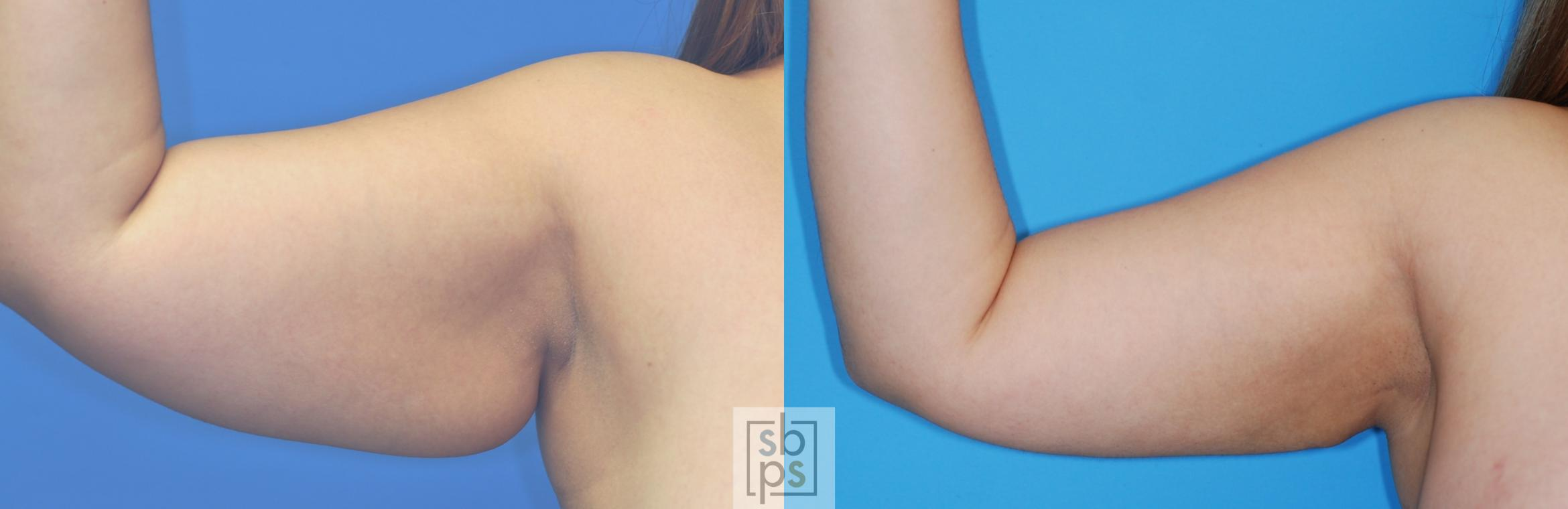 Arm Lift Before & After Photo | Torrance, CA | Plastic Surgery Source