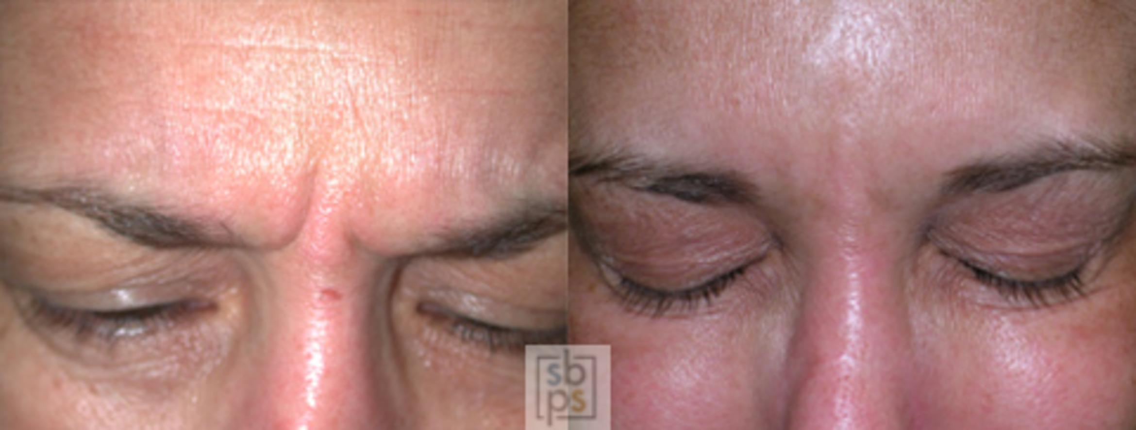 BOTOX® Cosmetic Before & After Photo | Torrance, CA | Plastic Surgery Source