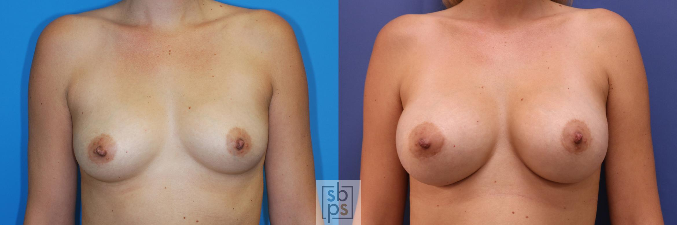 Breast Augmentation Before & After Photo | Torrance, CA | Plastic Surgery Source