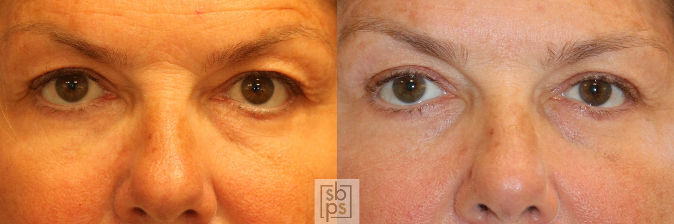 Brow Lift Before & After Photo | Torrance, CA | Plastic Surgery Source