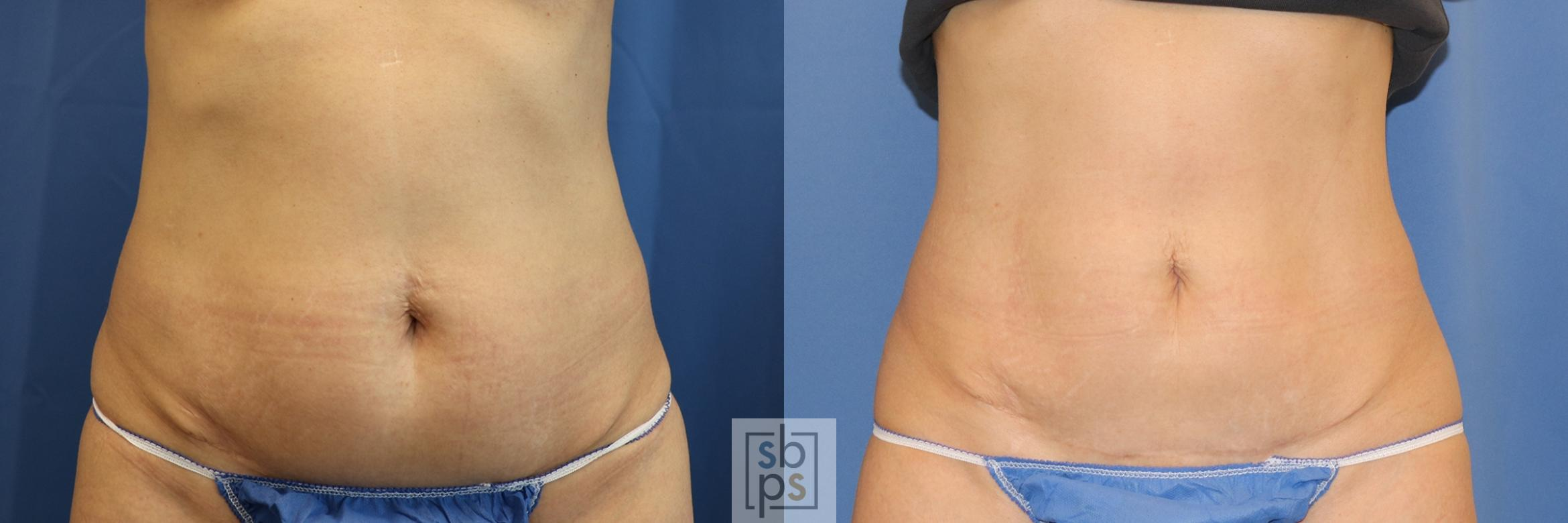 CoolSculpting Before & After Photo | Torrance, CA | Plastic Surgery Source