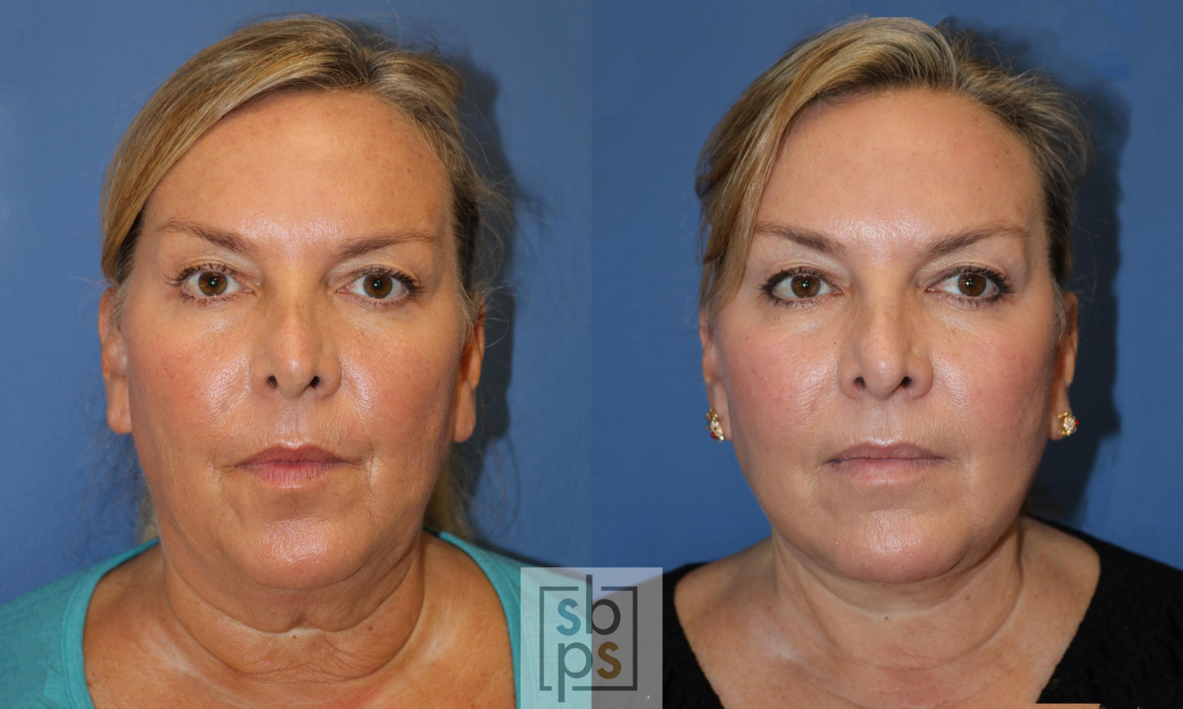 Facelift Before & After Photo | Torrance, CA | Plastic Surgery Source