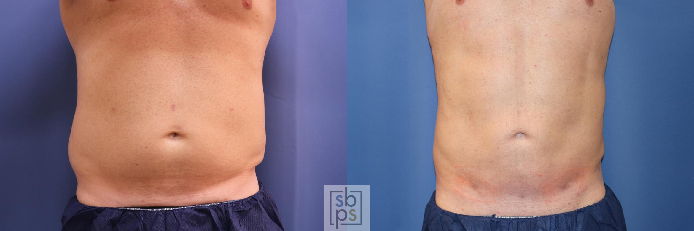 Liposuction Before & After Photo | Torrance, CA | Plastic Surgery Source