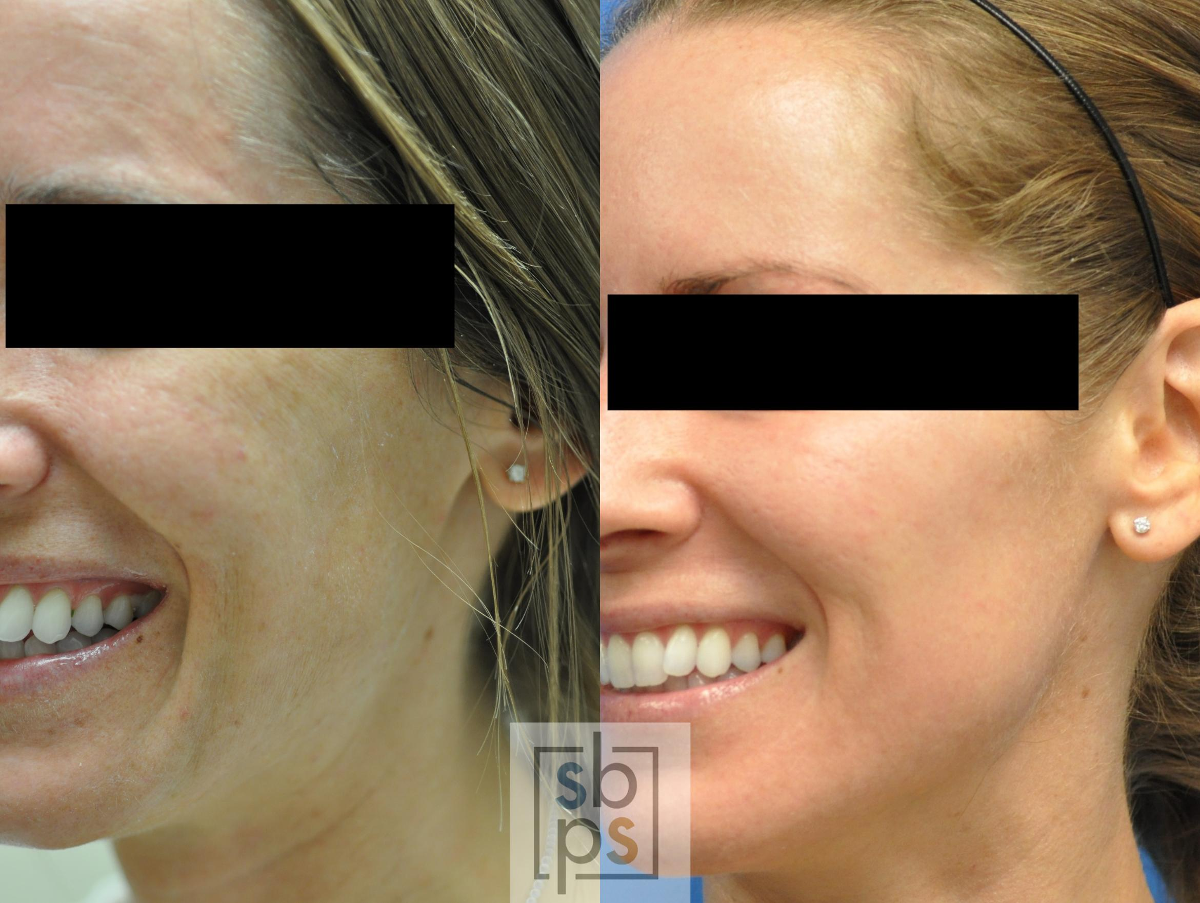 Microneedle Before & After Photo | Torrance, CA | Plastic Surgery Source