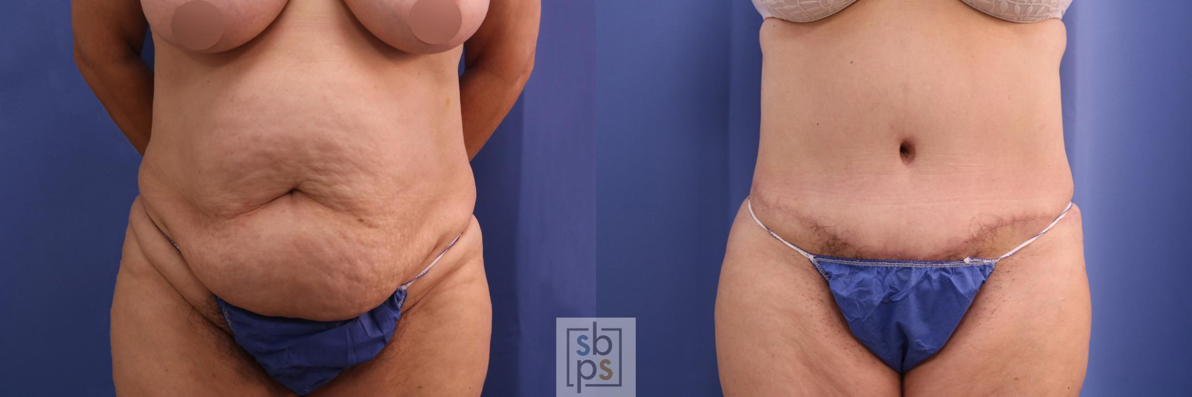 Tummy Tuck Before & After Photo | Torrance, CA | Plastic Surgery Source